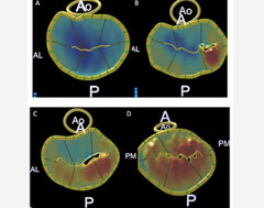 Advanced-Cardiac-Imaging-new