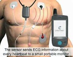 cardiac-event