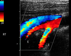 vascular-ultrasound